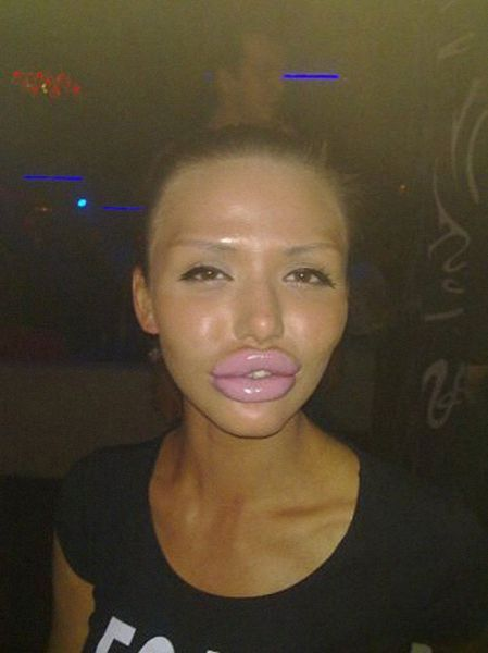 More-plastic-surgery-disasters10